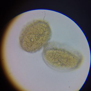 This is lily pollen. This net like structure around the pollen is apparently unique to this group of plants!